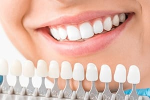 Teeth compared to whitening color chart