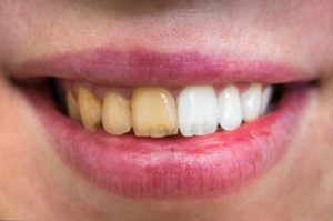 Before and after of teeth whitening in Waterford